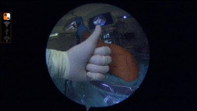 La artroscopia es una técnica muy positiva para el paciente. Aporta multiples ventajas para solucionar problemas de forma muy poco invasiva